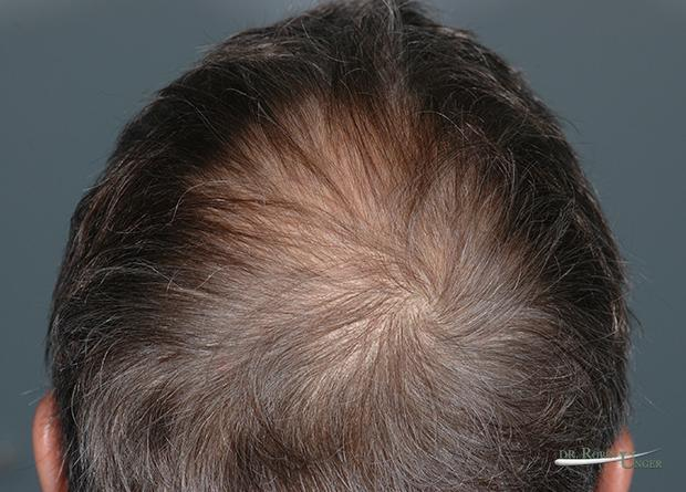 pic 4a RK Posterior half of head before the second surgery