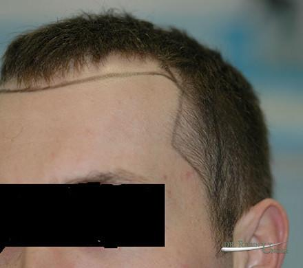 Male Hair Transplant Before & 6 Months After