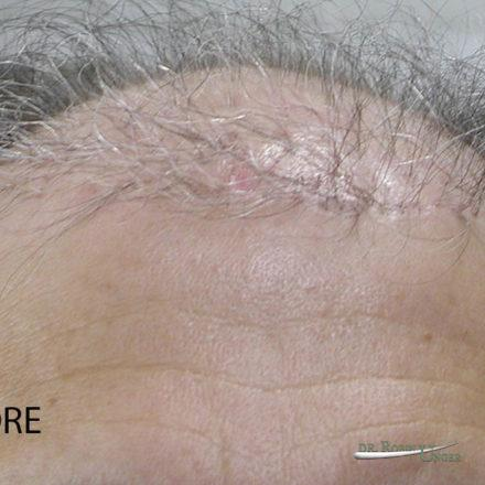 "Correcting ""pluggy looking"" hair transplant"