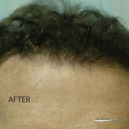 Hair Transplant in 49 Year Old Male to the front and vertex
