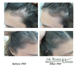 Before & After PRP