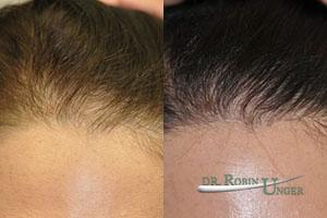 Before-hair-transplant-surgery-and-results