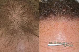 Hair transplant surgery for male hair loss