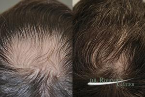Before-midscalp-hair-transplant.-One-year-later1