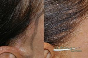 Hair transplant surgery to correct facelift scar