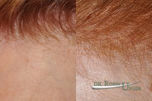 Before-surgery-to-frontal-area-and-results-after-one-year