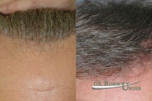 Before-surgery-to-repair-an-abrupt-hairline-and-pluggy-look-after-one-surgery