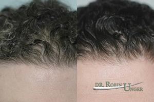 Before-surgery.-11-months-after-surgery-to-entire-frontal-area-without-a-hyper-dense-hairline
