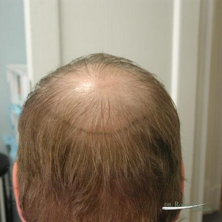 Male Hair Transplant Surgery to Crown Before & 5 Years After