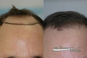 61 Year Old Male With Previously Transplanted Hair By Another Doctor