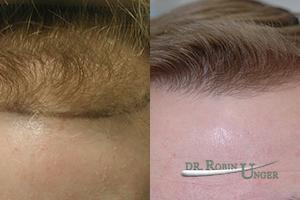 Male Hair Transplant Before and 2 Years After With Some Loss of Original Hair