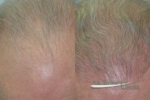 Hair Transplant With Light Colored Hair