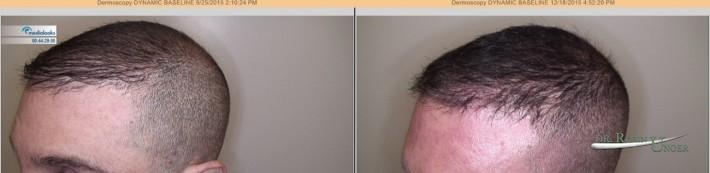male-pattern-hair-loss-2