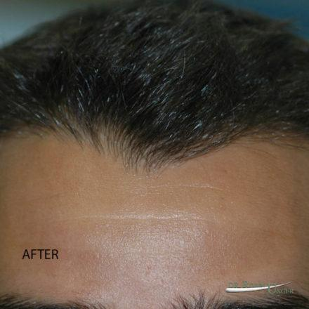 Hair transplant to the entire frontal region