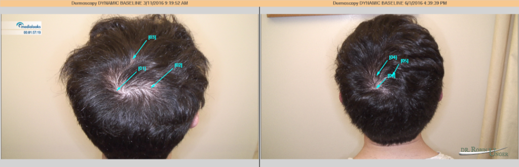 PRP for early Hair Loss