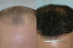 Hair Loss Treatment Doctor NYC