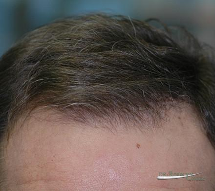 Male Hair Transplant With Earlier Growth Than Average