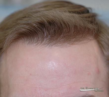 Male Hair Transplant Before and 2 Years After With Some Lose of Original Hair