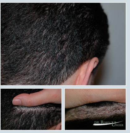 Hair Transplant Doctor NYC