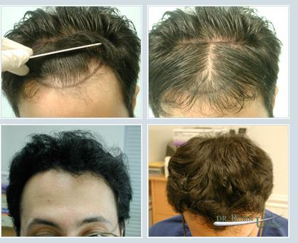 Hair Transplant Doctor NYC