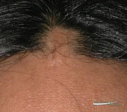 Hair transplant to correct scars