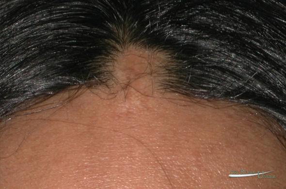 Scarring Alopecia Dr Robin Unger