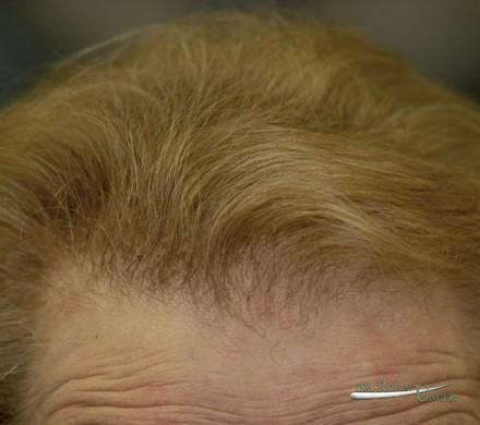 Severe female hair loss