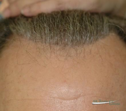 Hair transplant to refine hairline
