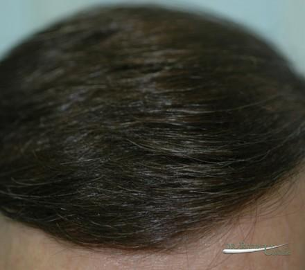 Treatment of a male with frontal hair loss