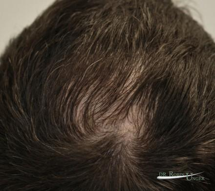 Midscalp hair transplant surgery