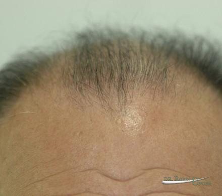 Correction of old hair transplant surgery