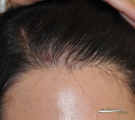 Young woman with hairloss, on spirinolactone and rogaine