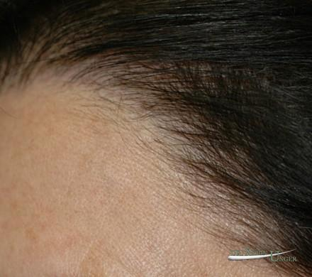 Women's hair replacement surgery
