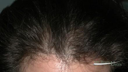 Hair transplant to area of female hair loss