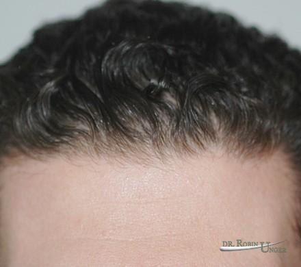 Hair transplant in a young man with substantial pre-existing hair