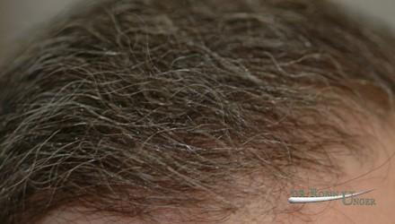 Subtle hair transplant surgery for men