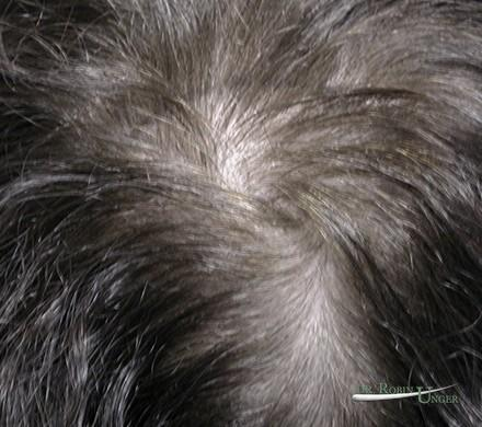 Treatment to hair thinning in the vertex