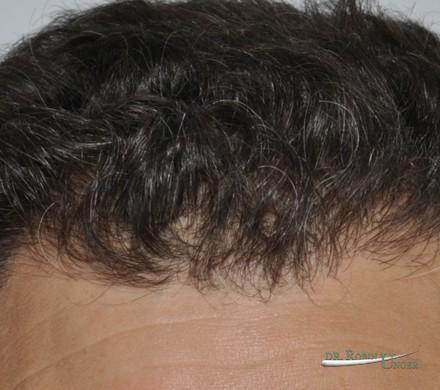 Male hair transplant surgery
