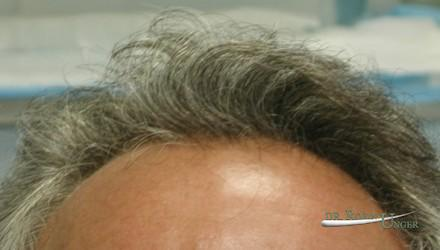 Hair transplant in pre-existing hair