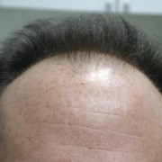 Hair transplant surgery and propecia
