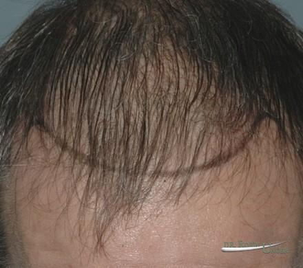 New York hair transplant surgery