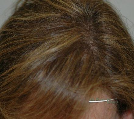 Female repair hair transplant surgery