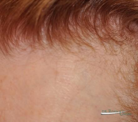 Frontal hair loss in woman