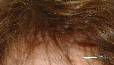 Women's hair transplant and correction of scar