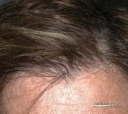 Woman's hair loss