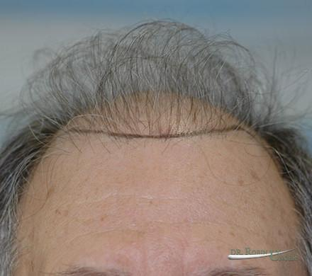 Hair Transplant in 71 Year Old Male