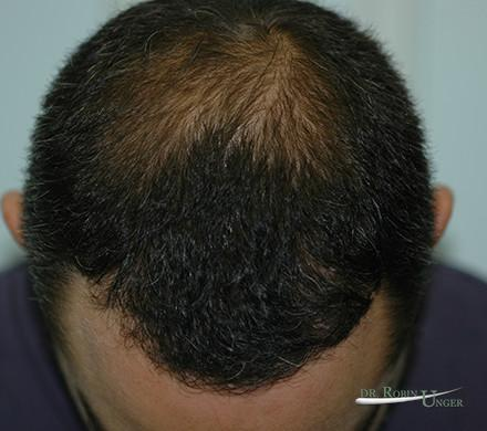 Hair transplant surgery for MPB