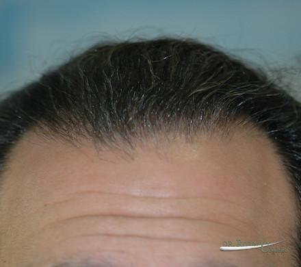 Treatment of a very large bald area