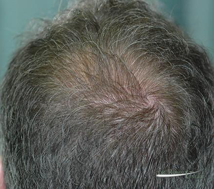 Hair Transplant To Vertex