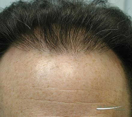 Hair Transplant in 48 Year Old Male